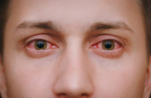 Pink Eye (Conjunctivitis): An Inside Look Into What It Is, It's Causes and Treatment